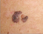 melanoma dermoscopia computerizzata